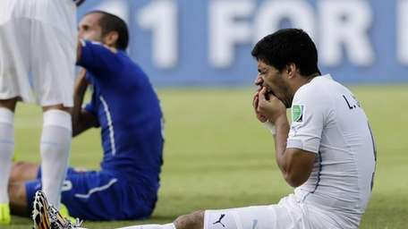Uruguay's Luis Suarez holds his teeth after running