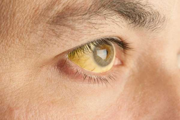 Jaundice develops when there is a problem in
