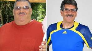 Michael Masciale turned to the gastric sleeve surgery