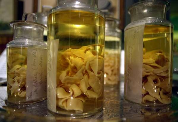 Tapeworms are stored in jars at an exhibit