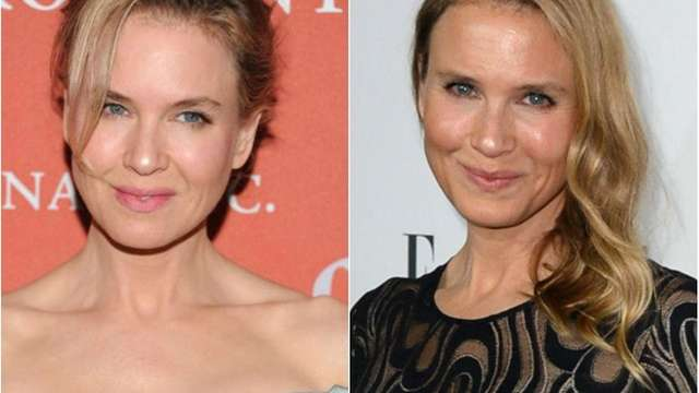 Renee Zellweger responds to speculation about her altered