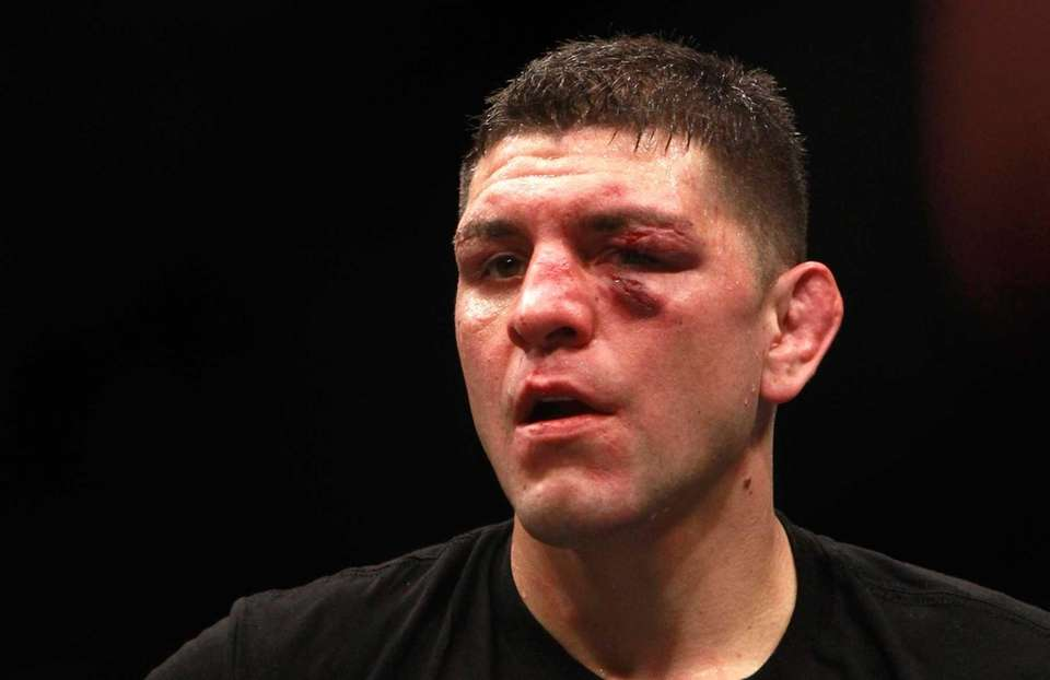 Nick Diaz stands in the Octagon after five